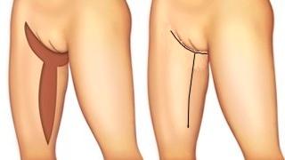 Dermolipectomie bovenbeen